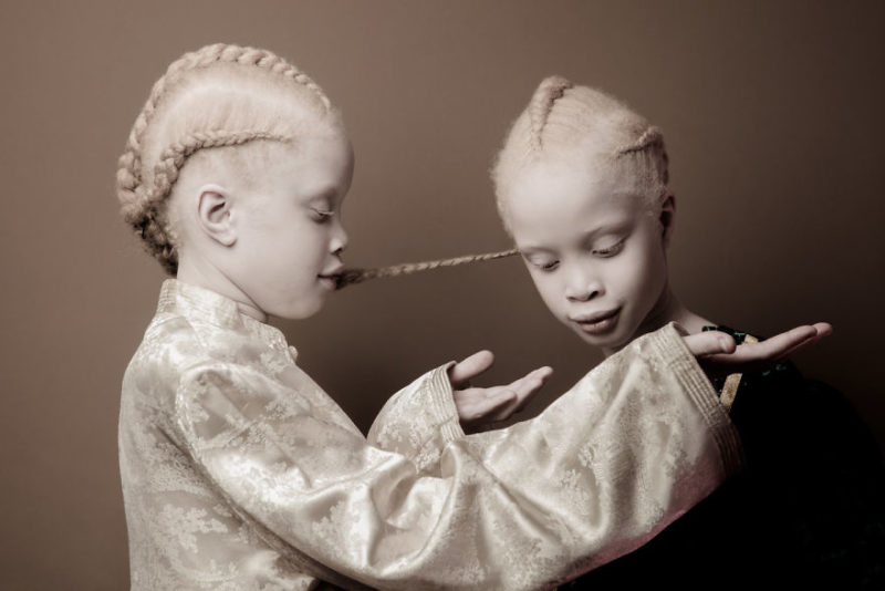 Meet Lara and Mara, the famous albino twins